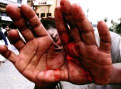Adolescente sem-teto espancado pela GCM, SP, 2004. Negativo colorido.